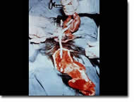 Hysterotomy Abortion